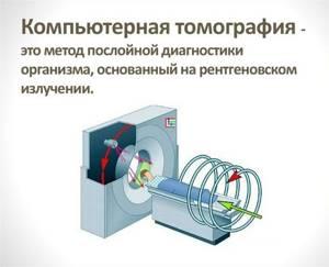 Проведение компьютерной томографии почек с контрастированием