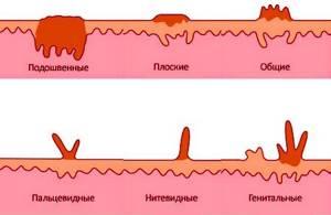 Папилломы на спине: диагностика и лечение новообразований