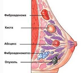 Как принимать Новомин при мастопатии: особенности приема и дозы