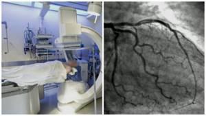 Показания для проведения компьютерной томографии сердца и сосудов