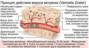 Симптомы ветрянки и способы лечения инфекционной патологии