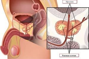 Заболевания предстательной железы: классификация и лечение