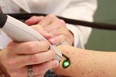 Сколько стоит удалить бородавку лазерным и радиоволновым методом