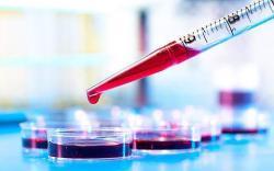 При каких заболеваниях требуется помощь врача-ревматолога