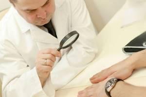 Подногтевая бородавка: диагностика и лечение наростов