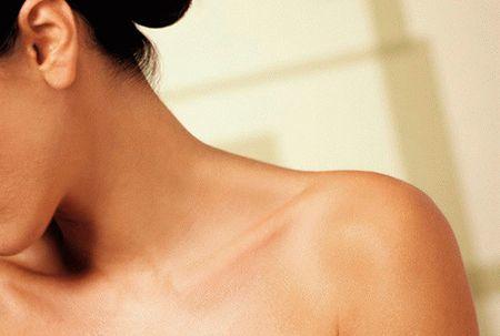 Бородавка на шее: причины и лечение опасных новообразований