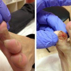 Как избавиться от бородавки на пальце ноги с помощью медикаментов