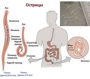 Признаки заражения глистами и меры профилактики заболевания