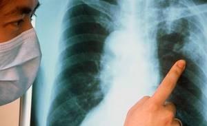 Кашель при туберкулезе: специфические признаки и методы лечения