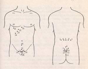 Лечение простатита иглотерапией простатит баня