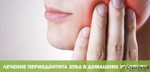 Симптомы периодонтита и методы лечения воспалительной патологии