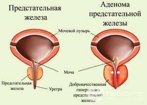 Гиперплазия предстательной железы: признаки и лечение заболевания