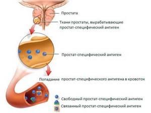 Простатспецифический антиген: норма и отклонения значений