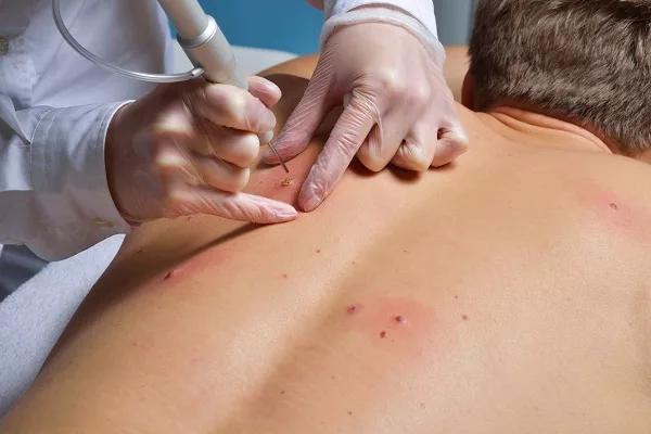 Папилломатозный внутридермальный меланоцитарный пигментный невус кожи