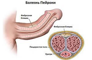 Симптомы болезни Пейрони и причины возникновения патологии