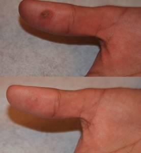 Применение средства «Папилайт» при папилломах и бородавках