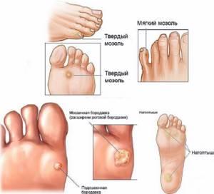 Бородавки на ногах: причины и лечение медикаментозными средствами