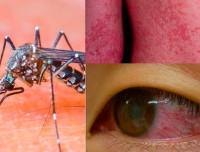 Симптомы вируса Зика и способы профилактики развития заболевания