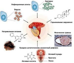 Инфекционный простатит: течение болезни и методы ее терапии
