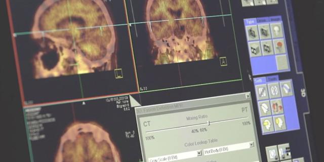 Позитронно-эмиссионная томография: как проводится исследование