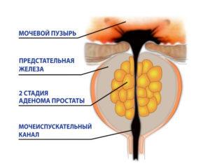 Кровь в моче при простатите: причины появления и принципы лечения