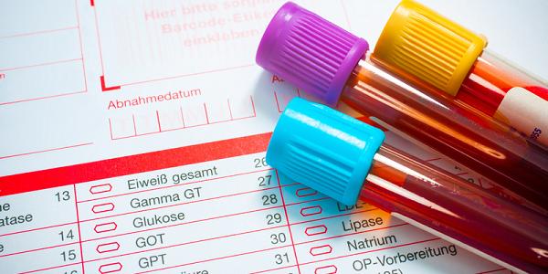 Причины опсоменореи и лечение нарушения менструального цикла