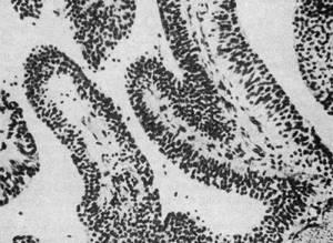 Как лечится переходно-клеточная папиллома мочевого пузыря