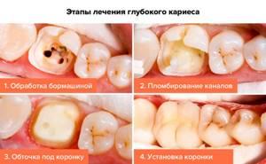 Симптомы глубокого кариеса зубов и методы лечения заболевания