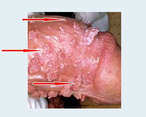 ВПЧ 21 тип: что это и какова симптоматика с методами лечения