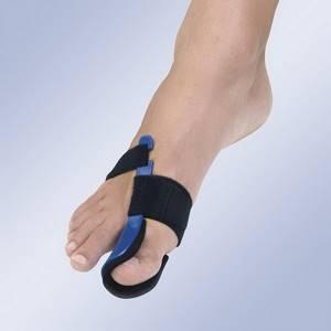 Применение вальгусной шины «valufix» для лечения деформации стоп