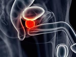 Простатит и цистит: причины возникновения и признаки болезней