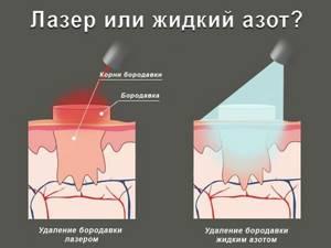 Подошвенные бородавки и натоптыши: в чем отличия между наростами