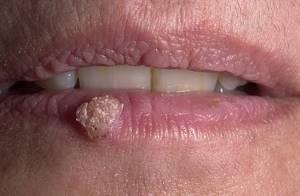 Бородавка на губе: причины появления и методы лечения наростов