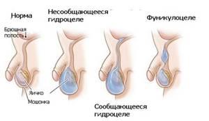 Лечение водянки яичек и меры профилактики развития заболевания
