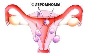 Симптомы фибромиомы и виды доброкачественного образования
