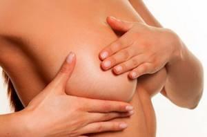 Папилломы на груди: клиническая картина и методы лечения наростов