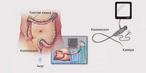Подготовка к проведению колоноскопии и ход выполнения процедуры