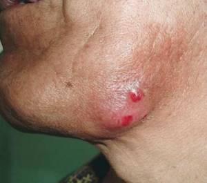 Симптомы актиномикоза и методы лечения инфекционного недуга