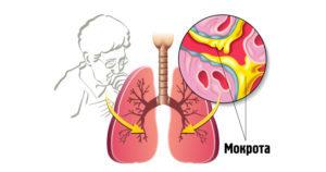 Белая мокрота при кашле: сопутствующие заболевания и лечение