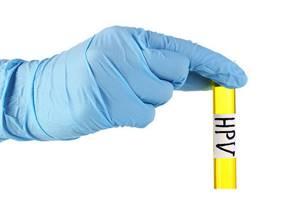 ВПЧ типирование: цели проведения и результаты обследования