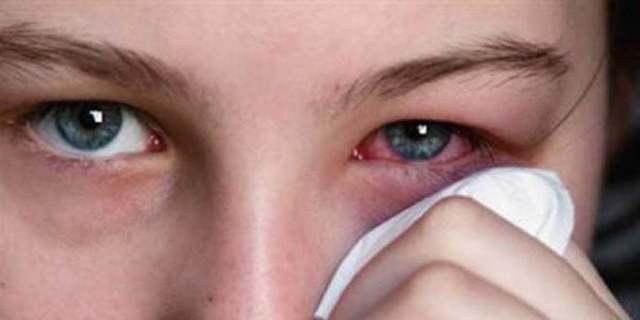 Лечение аденовирусного конъюнктивита и профилактика осложнений
