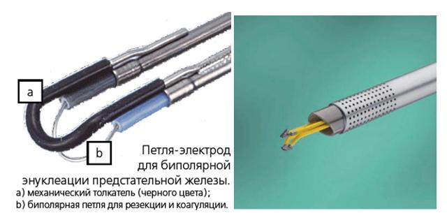 Лазерная абляция простаты: существующие техники выполнения