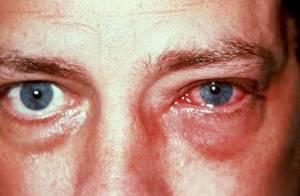Причины возникновения и симптомы аллергического конъюнктивита