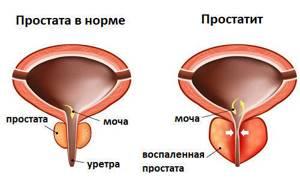 Простодин: капли действительно помогающие мужчинам от простатита