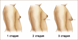 Лечение синдрома Клайнфельтера у мужчин и прогноз выздоровления