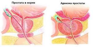 Размеры простаты при аденоме: как определить и о чем говорят
