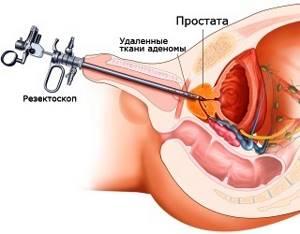 Пункция предстательной железы: как и зачем проводят исследование