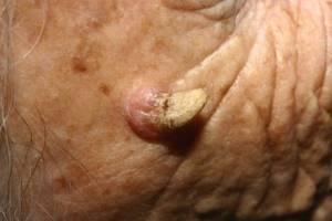 Кератопапилломы: разновидности с симптомами и вариантами лечения