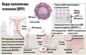 ВПЧ 2: действенные способы диагностики и лечения заболевания