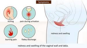 Симптомы и основные методы лечения вагинального кандидоза
